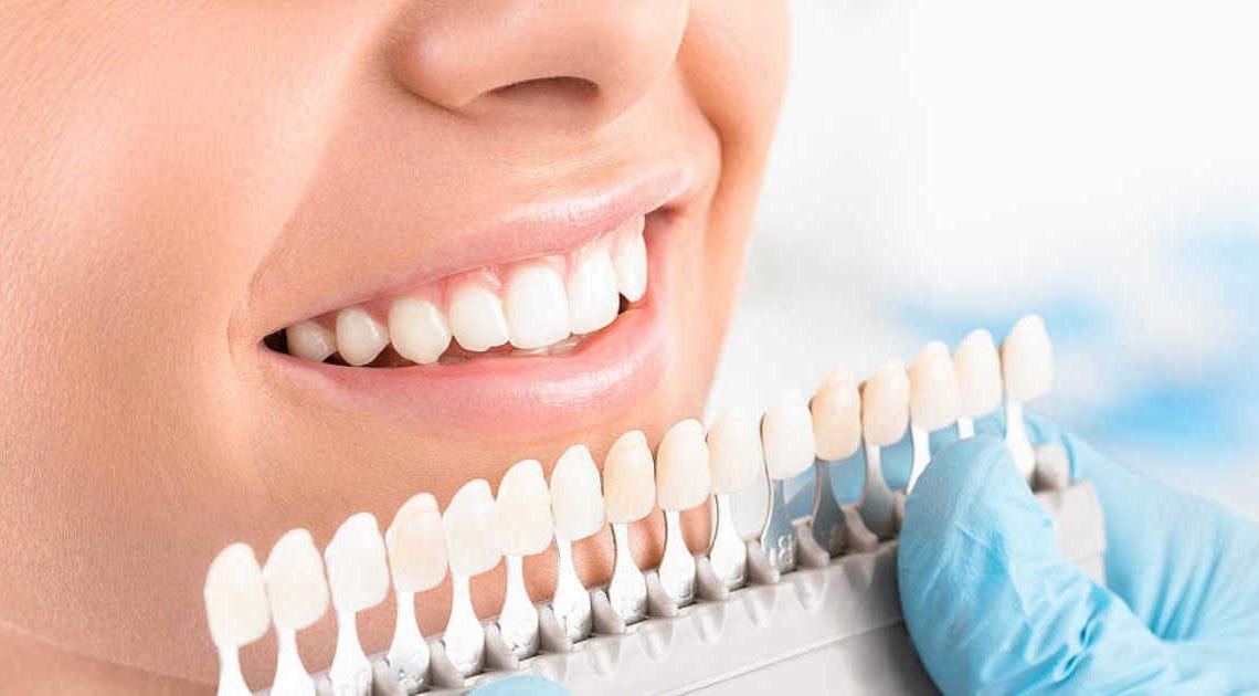 أبرز ما يجب معرفته من معلومات أساسية حول طب الأسنان التجميلي